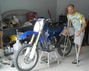 The bike and my broken leg
